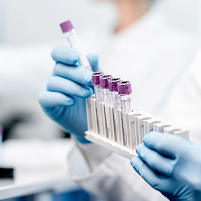 A new testing technology provides patients with an accurate assessment of COVID-19 diagnosis.